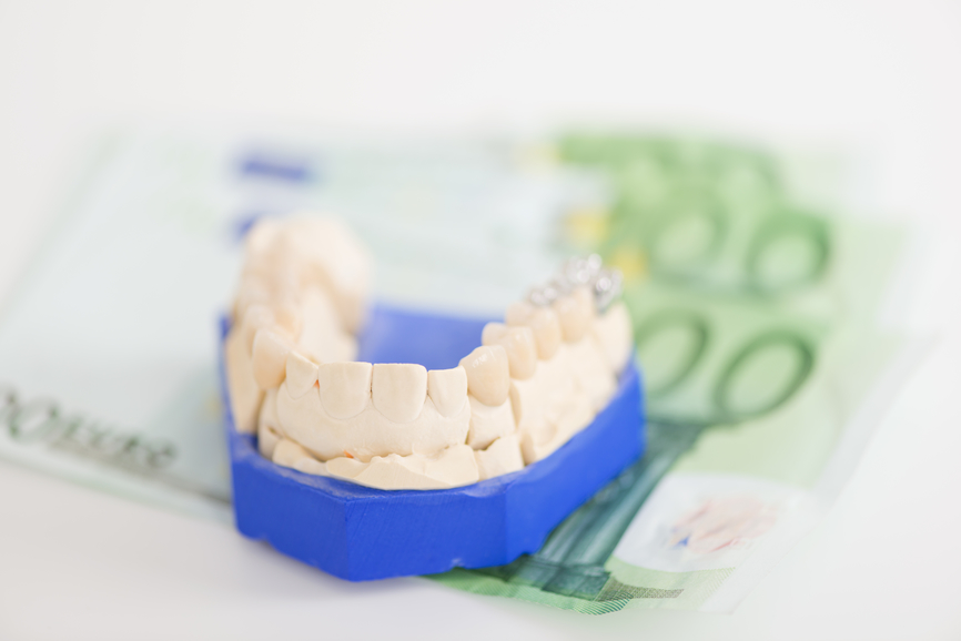 Closeup of artificial teeth on paper currency in workshop